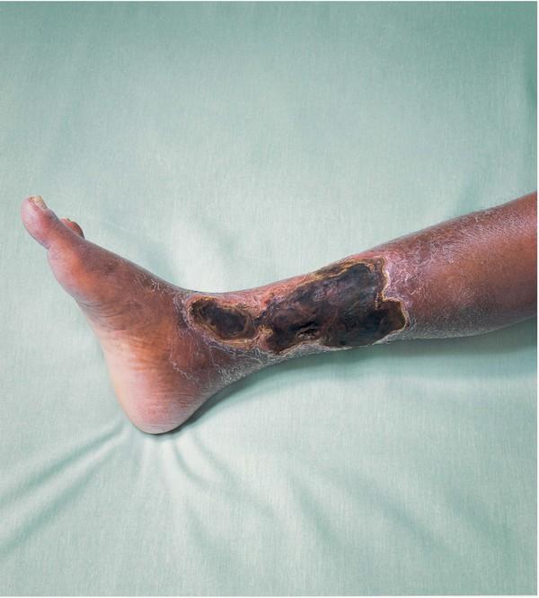 Облитерирующий эндартериит нижних конечностей симптомы