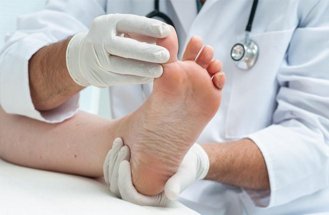 Что такое облитерирующий эндартериит сосудов нижних конечностей и лечение