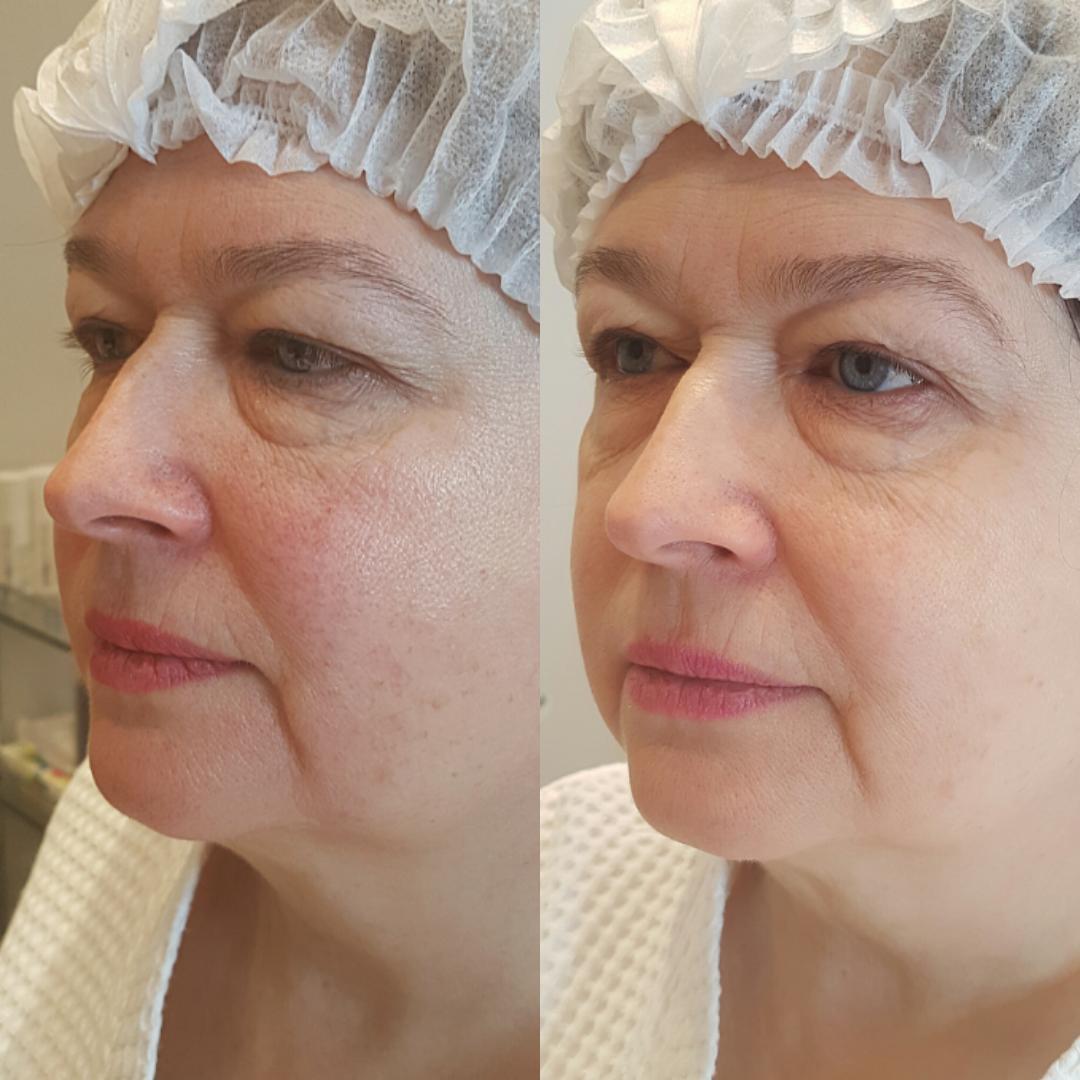 Лечение купероза лазером: как проходит процедура, противопоказания + фото и отзывы