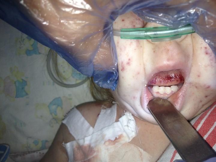 Менингококковая инфекция: что это такое, признаки, причины, лечение