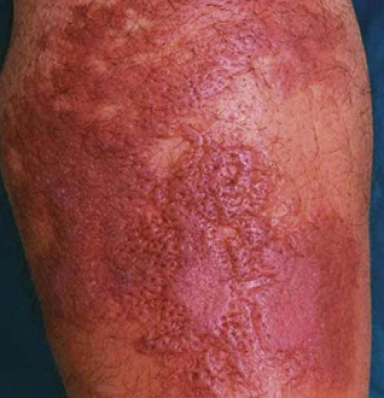 Рожа на ноге: фото, причины болезни, лечение, симптомы