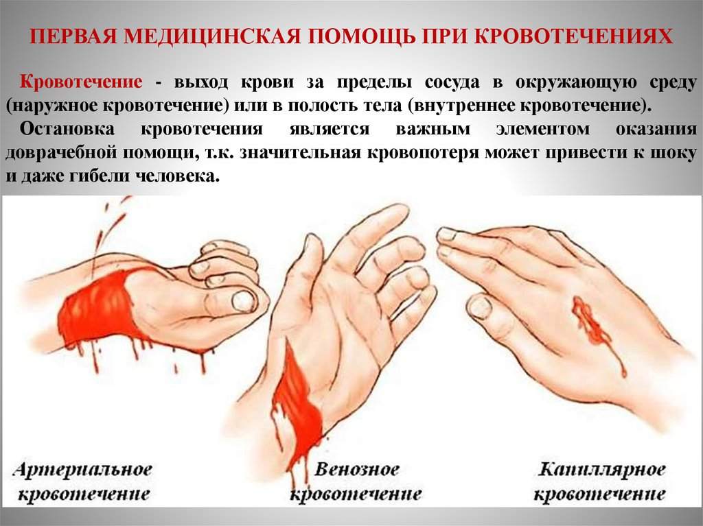 Кровотечение - как оказать помощь? классификация, виды, наружное, внутреннее, артериальное, венозное, капиллярное, симптомы и признаки, способы остановки кровотечения, оказание первой помощи. жгут при кровотечении.