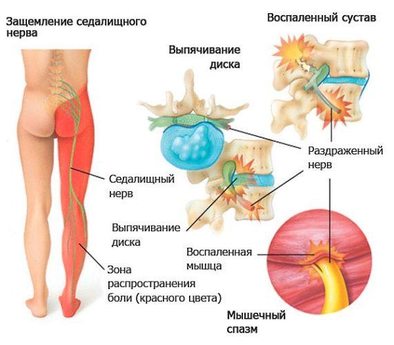 Защемление нерва в пояснице — причины, симптомы и лечение
