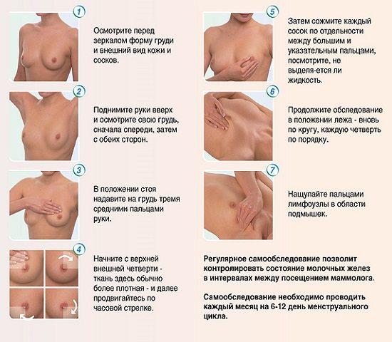 Мастопатия: когда нужна биопсия молочной железы