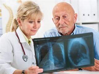 Пневмония у пожилых людей   eurolab   пульмонология