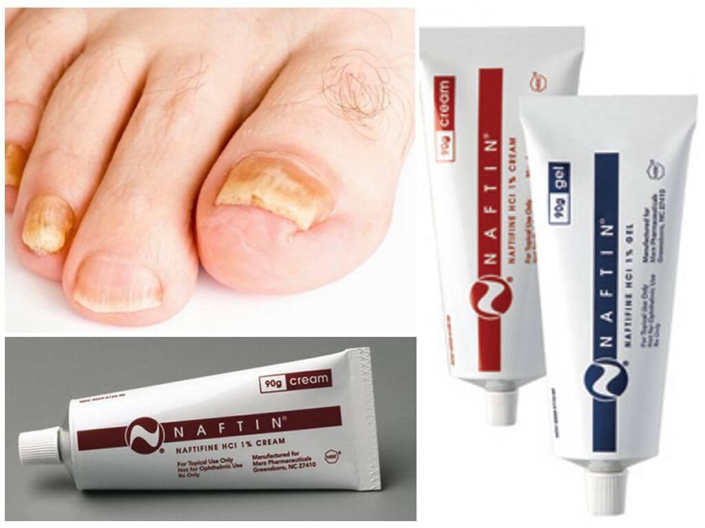 «нафтифин» от грибка ногтей: отзывы, цена и аналоги