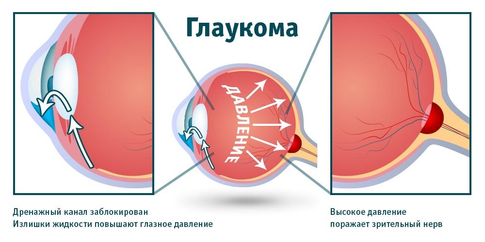 Что значит и чем опасно высокое глазное давление?