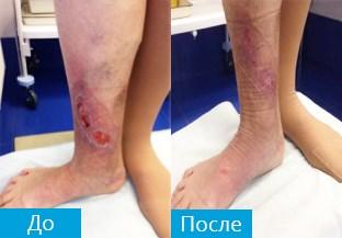 Лечение трофических язв нижних конечностей – препараты при заболевании