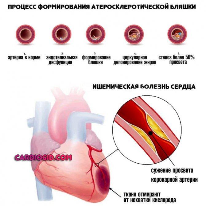 Сердечный приступ – причины, как распознать по симптомам и оказать первую помощь