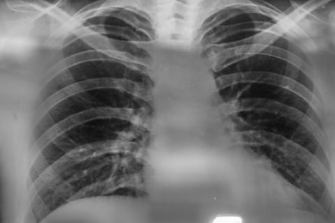 Как отличить по кашлю бронхит от пневмонии