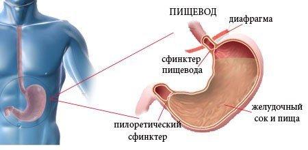 Несмыкание кардии желудка лечение народными средствами