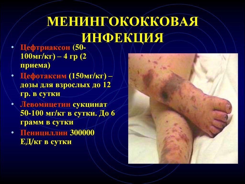 Менингококковая инфекция (менингококк): заражение, признаки, как лечить, профилактика