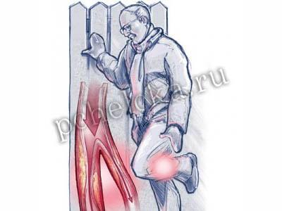 Эндартериит нижних конечностей, симптомы, лечение