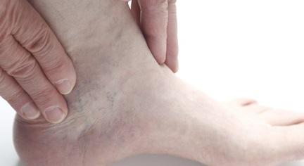Причины возникновения гнойного артрита голеностопного сустава, симптомы, методы лечения, профилактики и осложнения