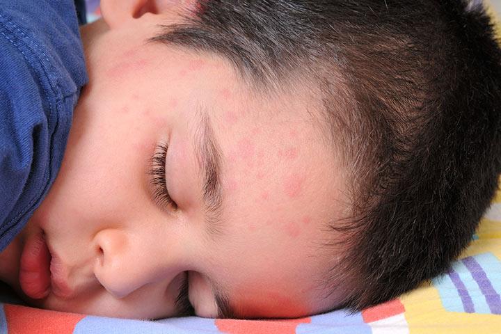 Симптомы и лечение крапивницы у детей