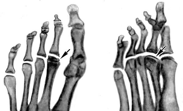 Остеохондропатии костей