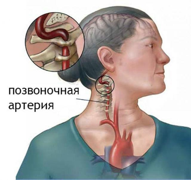 Цервикокраниалгия — что это такое, симптомы и лечение