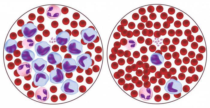 Анализ крови нейтрофилы лимфоциты норма