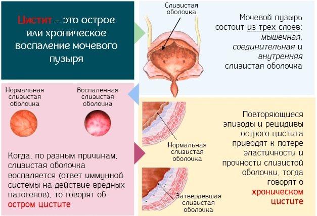 Монурал: инструкция по применению, аналоги и отзывы, цены в аптеках россии