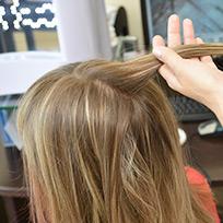 Лечение заболеваний волос