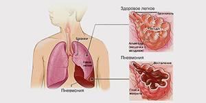 После пневмонии боль спине: причины, симптомы и лечение