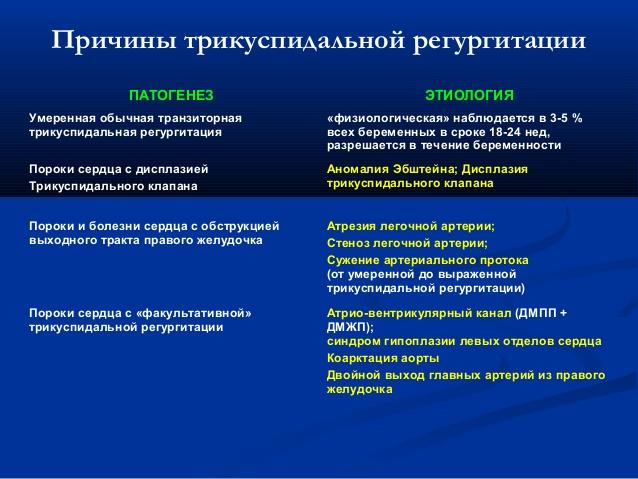 Причины митральной регургитации 1-4 степени, как выявить проблему и способы лечения