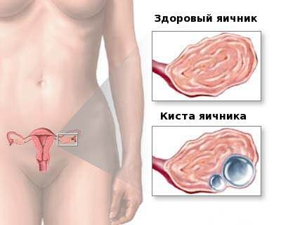 Киста левого яичника: причины и методы лечения