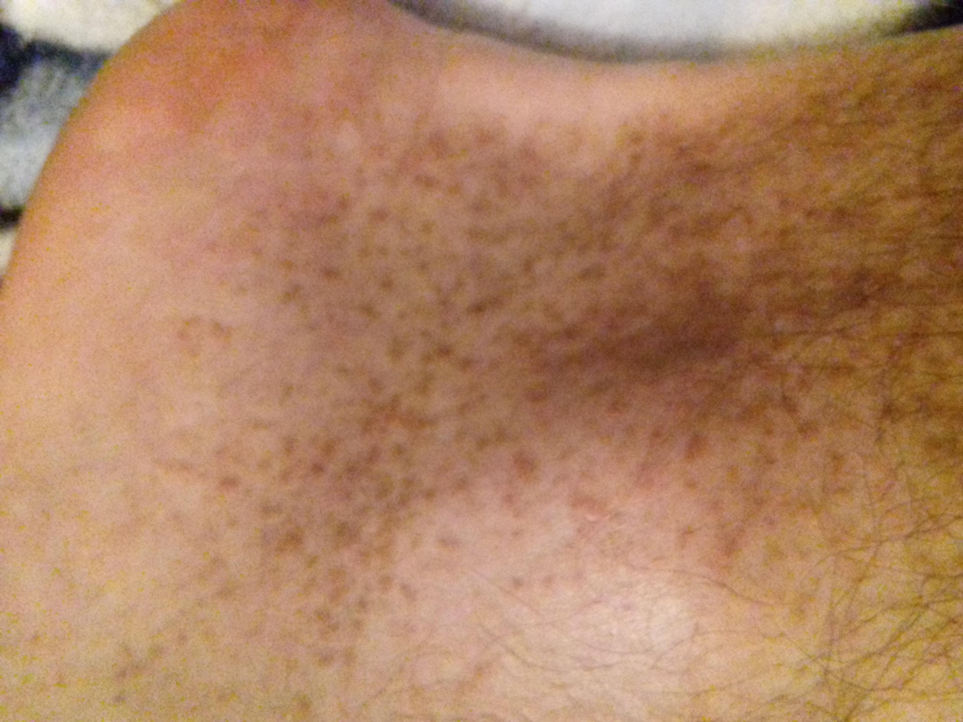 Изменение цвета кожи — причины и лечение