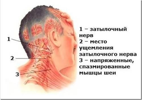 Лечение шейного остеохондроза в стадии обострения