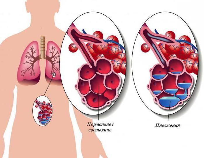 Прикорневая пневмония: признаки и лечение