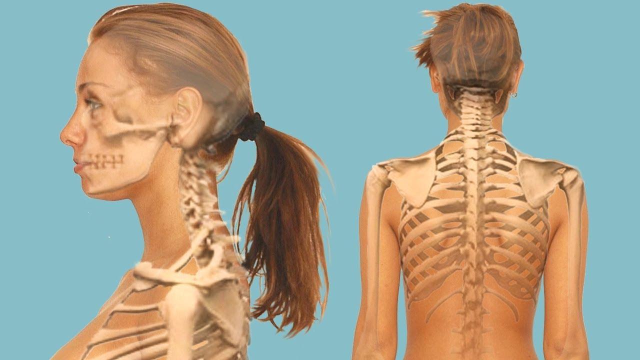 Как лечить ущемление нерва в поясничной области?