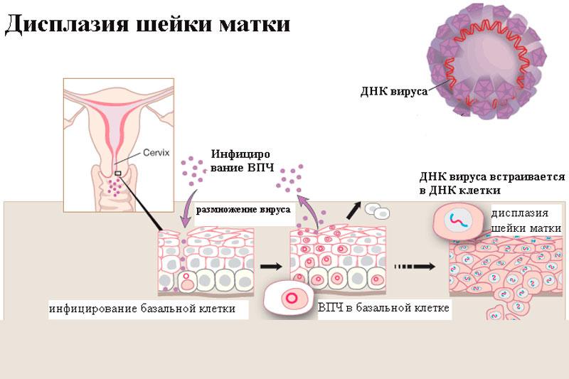 Что такое дисплазия шейки матки второй степени и как её лечить?