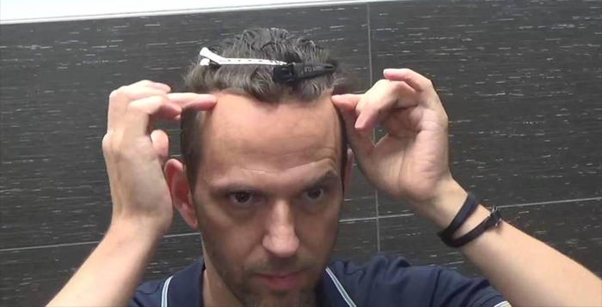 Почему мужчины лысеют: от чего появляются залысины в раннем возрасте?