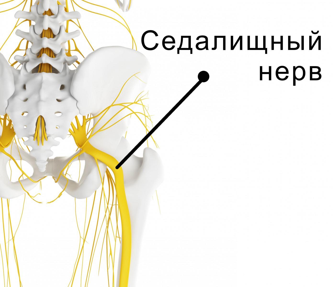 Чем и как лечить воспаление седалищного нерва в домашних условиях