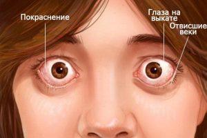 Пучеглазие (экзофтальм)