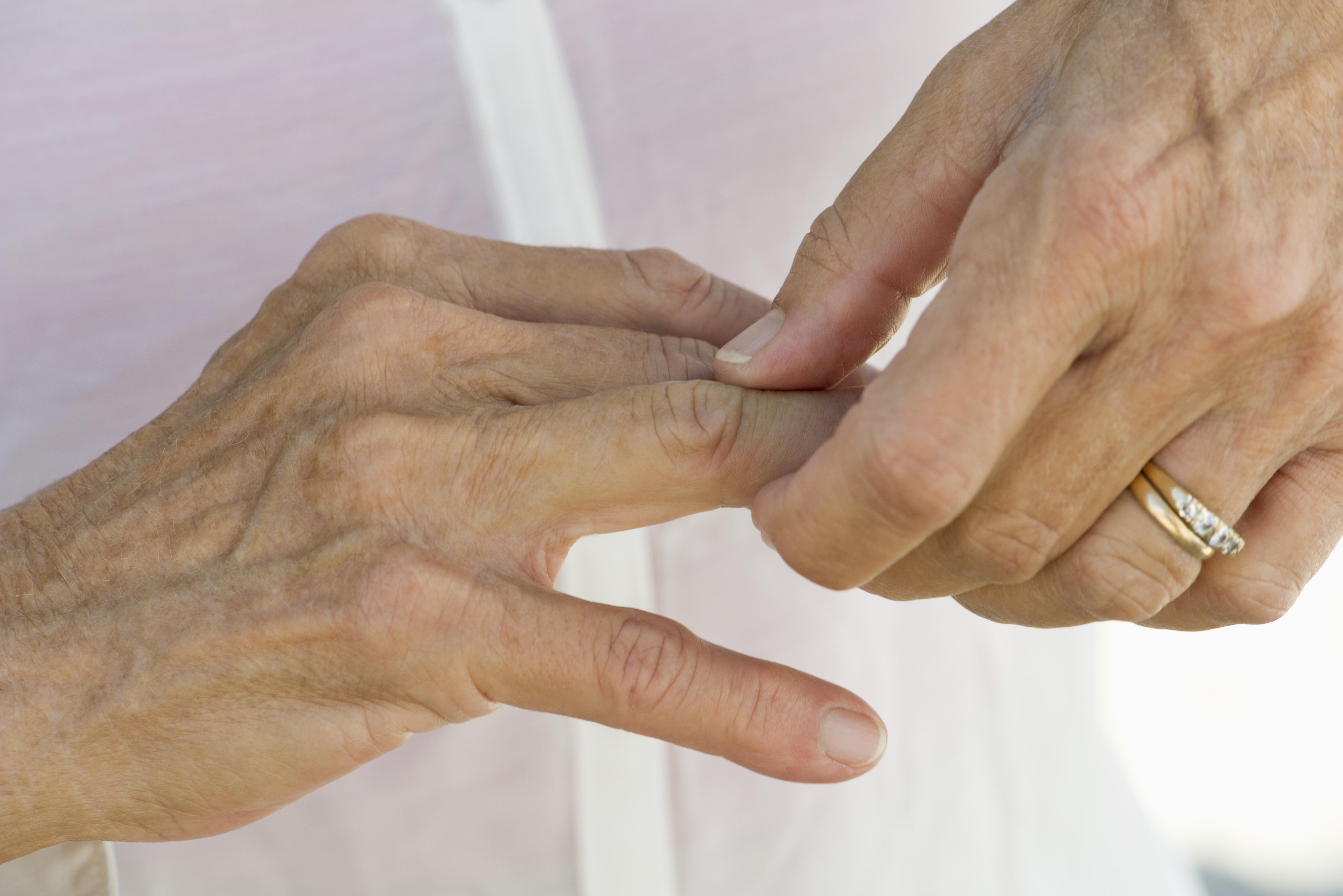 Что нельзя при остеоартрозе