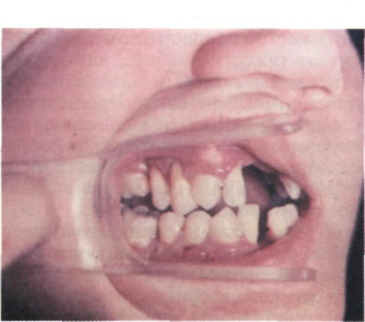 Потемнение эмали зубов: причины и способы лечения