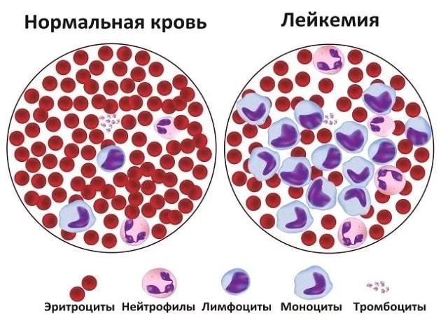 Повышение уровня лейкоцитов в крови – что это может означать?