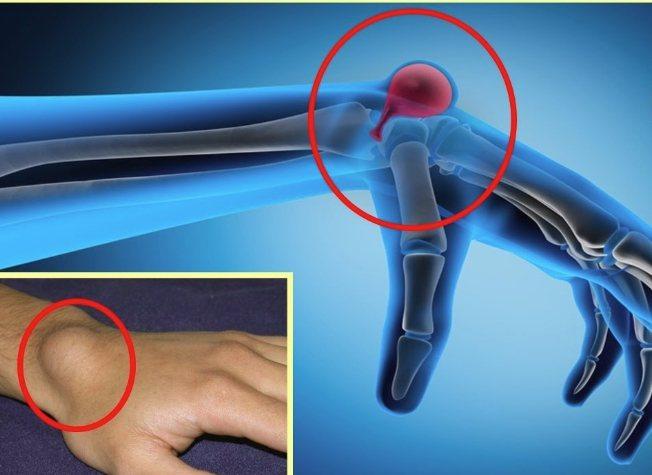 Как лечить гигрому на ноге