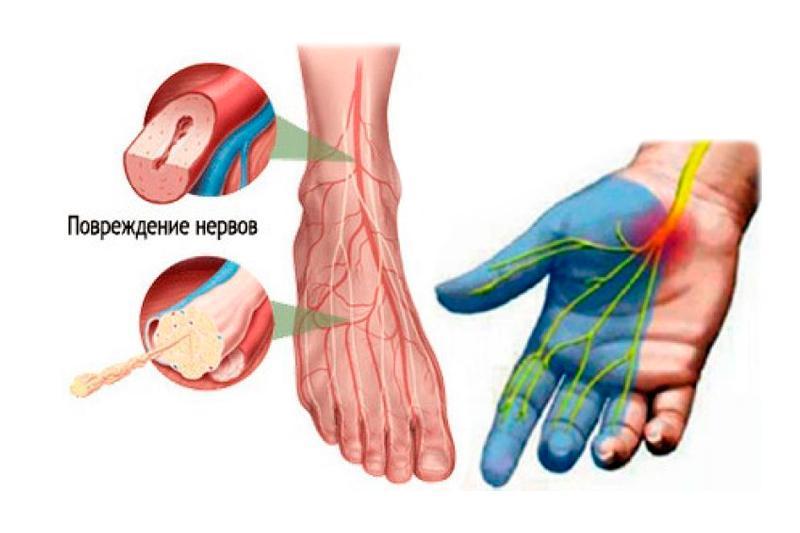 Диабетическая полинейропатия конечностей нижних и верхних: лечение, мкб-10, препараты, симптомы, народные средстваdiabet doctor