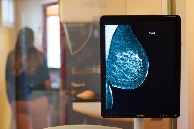3d маммография — все что нужно знать