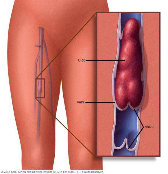 Флебит: причины, классификация, симптомы и возможные осложнения