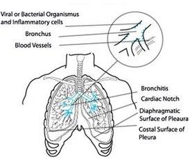 Пылевой бронхит: диагностика и лечение