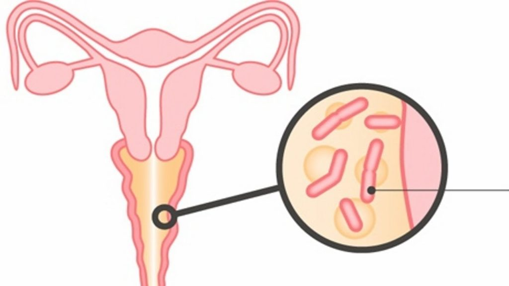 Бактериальный вагиноз - лечение и симптомы