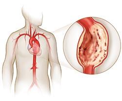 Аневризма аорты: аневризма брюшной и грудной аорты