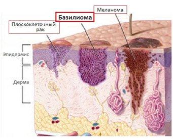 Базалиома носа: фото кожи на носу, лечение, удаление