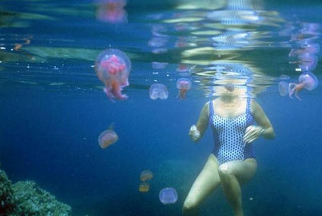 Укус медузы: симптомы и лечение