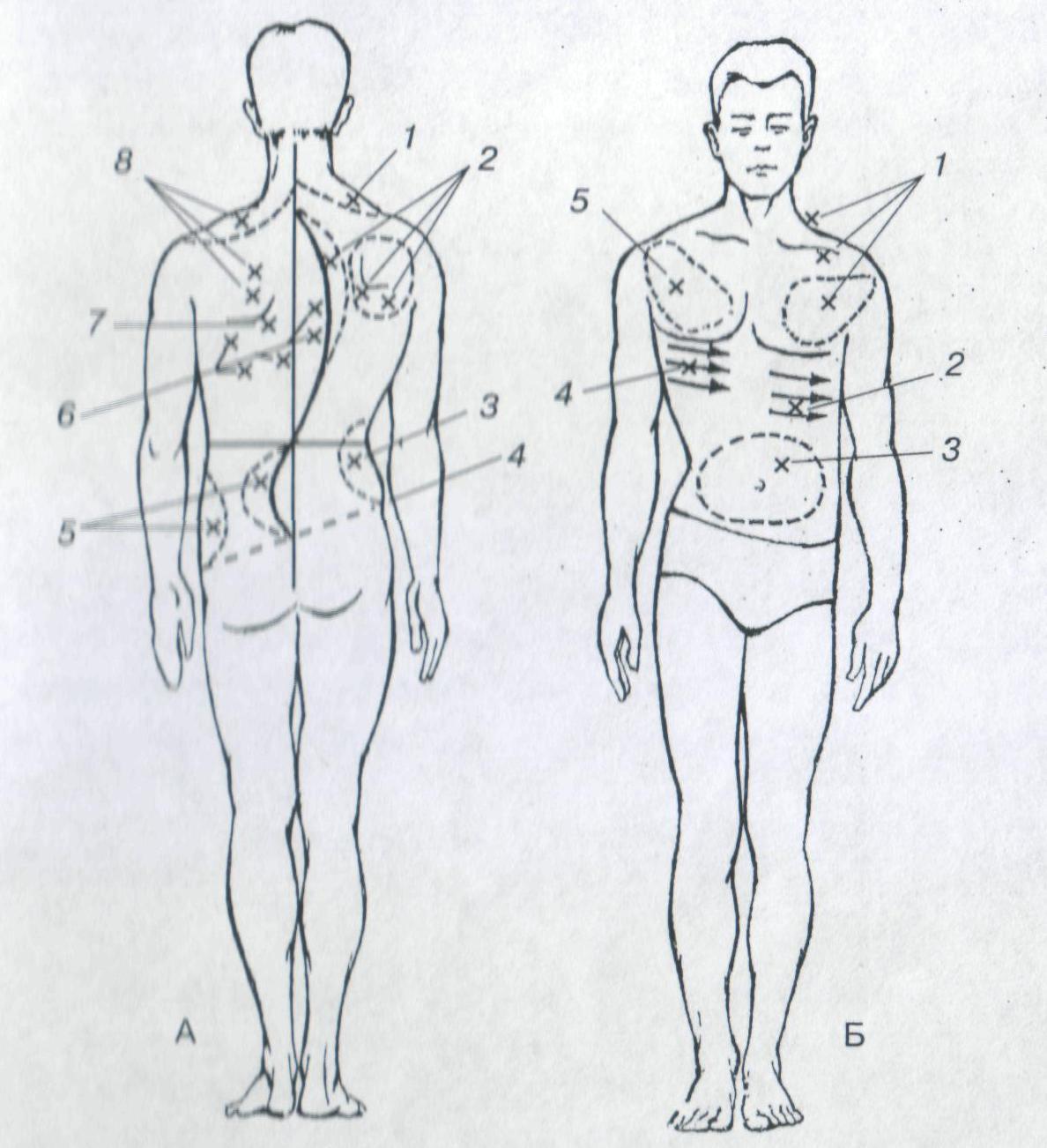 Гипокифоз или сглаженный кифоз грудного отдела позвоночника