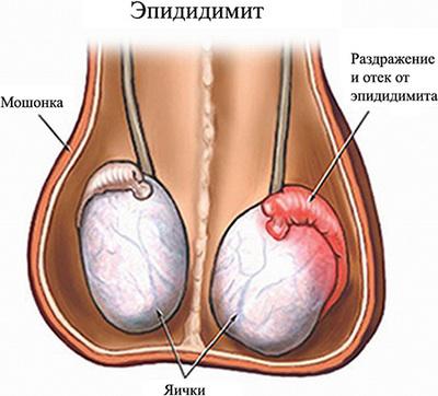 Виды выделений из уретры у мужчин, причины и лечение