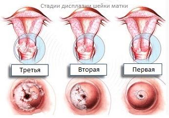 Лечение дисплазии шейки матки: основные принципы иэффективные препараты